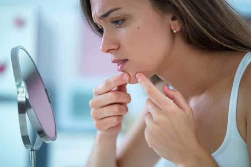 Acne vulgaris bestrijden met vitaminen mineralen