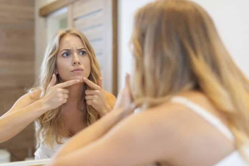 Acne bestrijden met tips en informatie