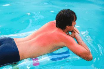 verbrande huid is schadelijk