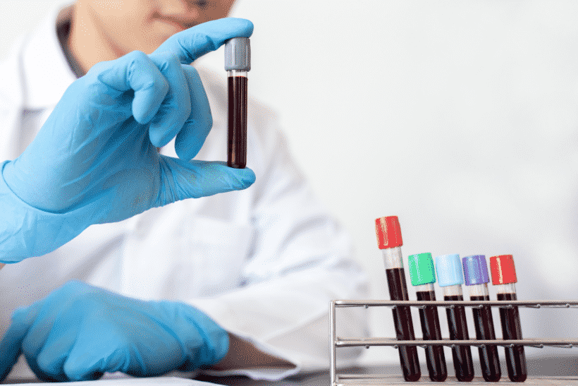 vitaminen en mineralen laten testen