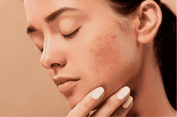 zinc supports acne reduction